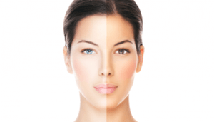 Tationil Glutathione Injectables Reviews - The Best Gluta ...